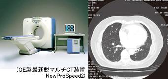 GE製最新鋭マルチCT装置 NewProSpeed2