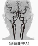 頭頸部MRA